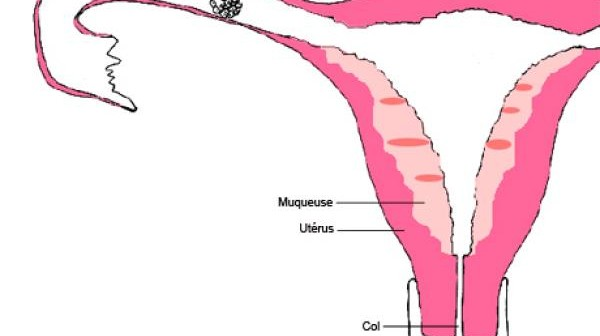 Grossesse extra-utérine (GEU)