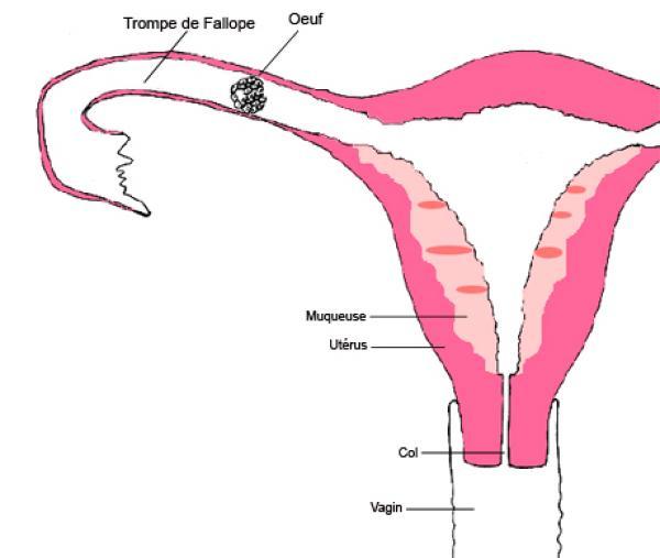 Grossesse extra ut rine geu - Fausse couche grossesse extra uterine ...